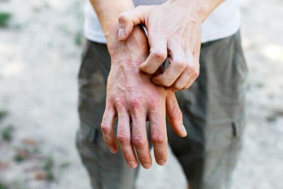 6 remèdes maison pour traiter la dermatite de contact