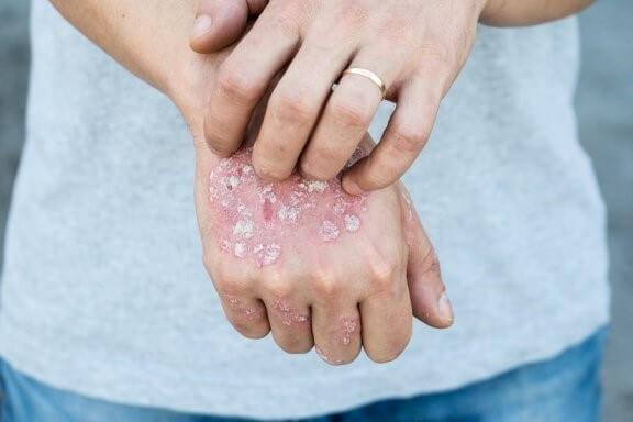 5 traitements topiques à base de plantes contre le psoriasis