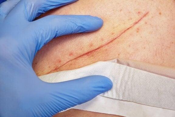 Techniques de base pour bien soigner une plaie