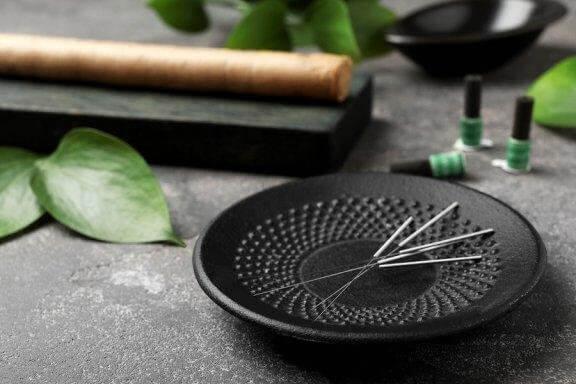 5 bienfaits de l'acupuncture que vous voudrez connaître