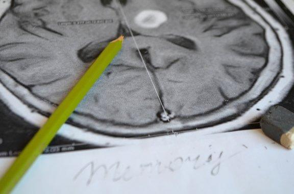 Amnésie : causes, symptômes et prévention