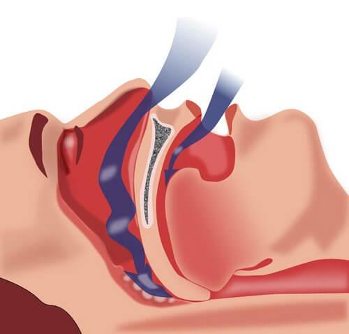 L'apnée du sommeil entrave le bon déroulement de la respiration