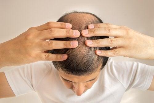 Les causes de la chute de cheveux