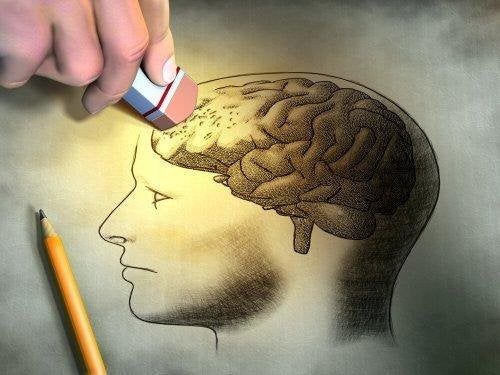 Illustration de cerveau souffrant d'amnésie