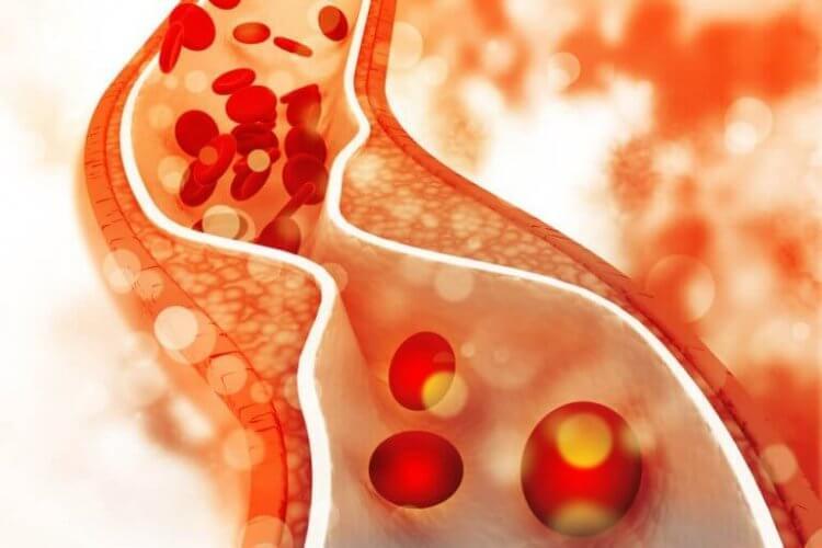 régime inadapté et cholestérol