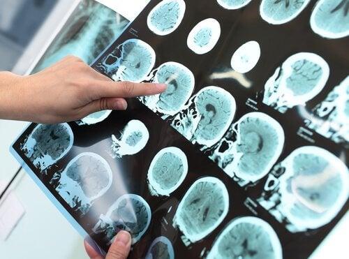 Les symptômes du trouble neurocognitif majeur