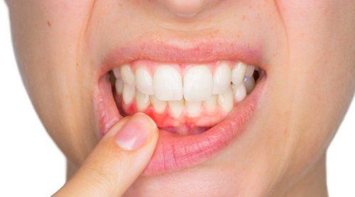 Qu'est-ce qu'un abcès dentaire et comment faut-il le traiter ?