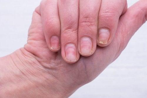 Eviter les ongles incarnés au niveau des mains.