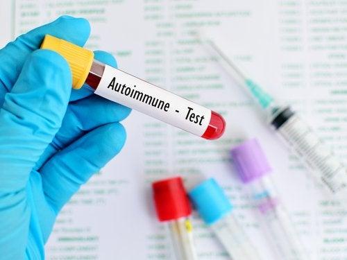 test de dépistage des maladies auto-immunes fréquentes
