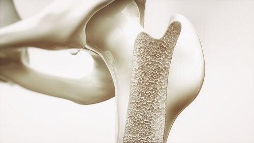 médicaments corticostéroïdes contre l'ostéoporose