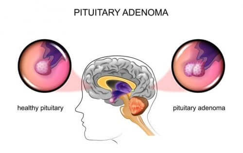 Tumeur de la glande pituitaire (ou hypophyse) : causes et symptômes