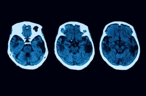 Atrophie corticale postérieure : diagnostic et traitement