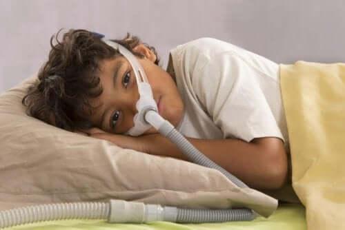 Syndrome de l'apnée obstructive du sommeil chez les enfants