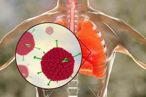 Le virus du syndrome respiratoire aigu sévère