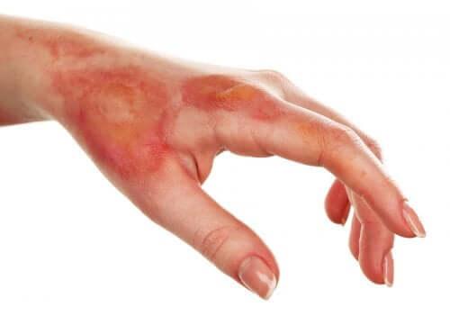 Une main nécessitant des soins contre la brûlure