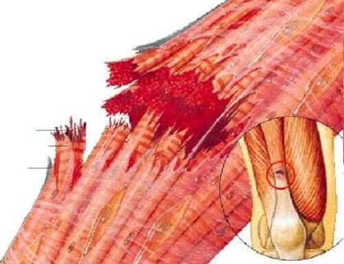 Il existe des traitements contre le claquage musculaire