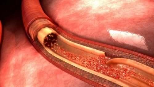 Qu'est-ce qu'une dissection aortique ?