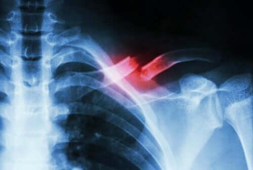 Radiographie d'une fracture de stress