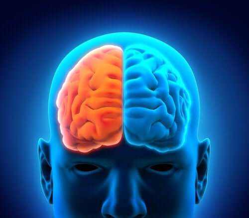 Qu'est-ce que l'hémisphérectomie ?