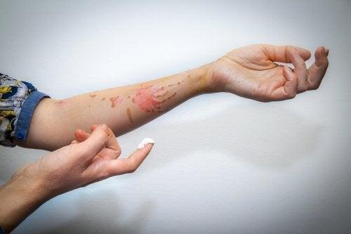 Les premiers secours pour soigner une brûlure superficielle