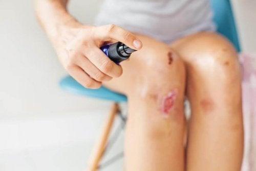 Conseils pour éviter et traiter une blessure