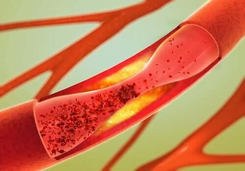 Un vaisseau sanguin endommagé dans le cadre de la démence vasculaire