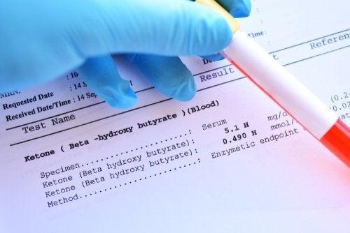 Une analyse de sang