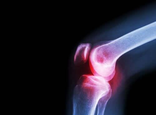 Une radiographie de l'arthrose au genou