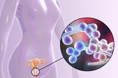 Tout savoir sur la candidose vulvo-vaginale