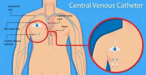 Perforation vasculaire par cathéter veineux central