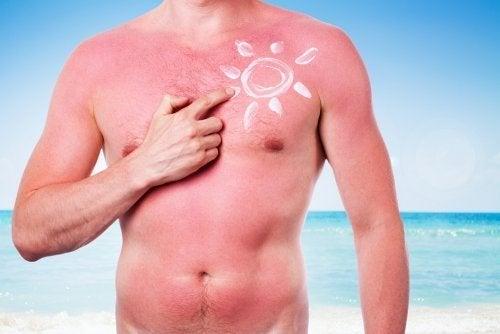 les coups de soleil sont des effets néfastes du soleil sur la peau