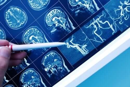 La démence vasculaire, en quoi cela consiste ?