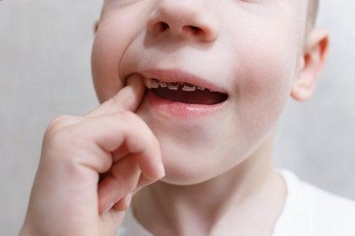 Un enfant avec des douleurs dues aux caries dentaires