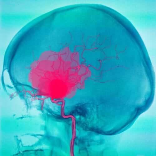 L'imagerie d'une paralysie cérébrale due à une hémorragie