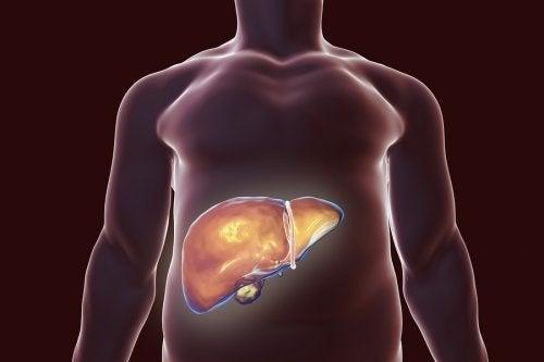 L'alimentation en cas de calculs biliaires