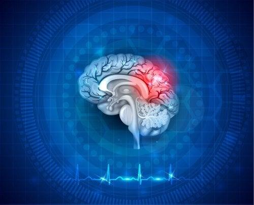 Un schéma du cerveau souffrant d'AVC du fait du flutter auriculaire