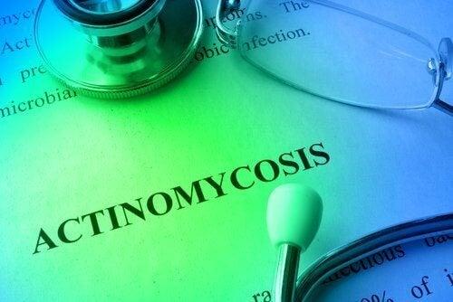 Traitements et prévention de l'actinomycose