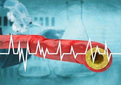 La coupe schématique d'une artère avec beaucoup de cholestérol