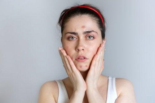 Une femme qui souffre d'acné pendant les règles
