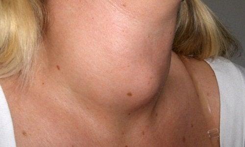 Une femme avec une bosse dans le cou
