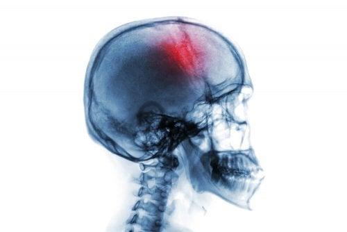 Le schéma d'un cerveau subissant une hémorragie dans le cas d'une apoplexie