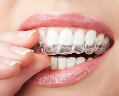 Un appareil d'orthodontie invisible