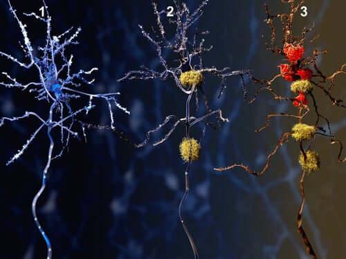 Quels sont les effets du donépézil sur les neurones ?