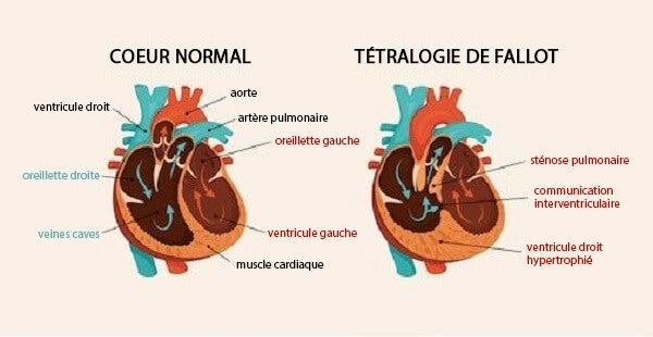 Schémas cardiaques