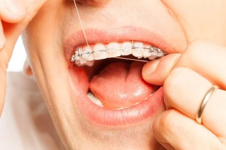 Utiliser du fil dentaire pour une bonne hygiène dentaire