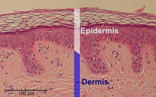 L'acide salicylique peut avoir des effets néfastes sur l'épiderme