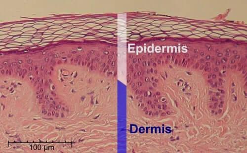 Illustration de l'épiderme.