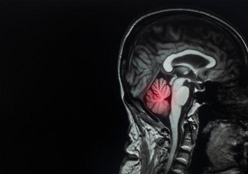Métastases cérébrales : qu'est-ce que c'est et comment les traiter ?
