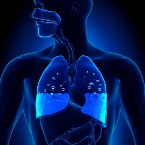L'œdème pulmonaire : symptômes et causes