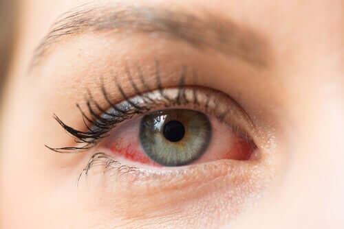 Un oeil rouge à cause de la kératite herpétique